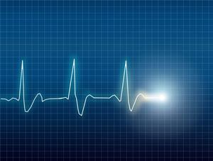 elektrokardiograph