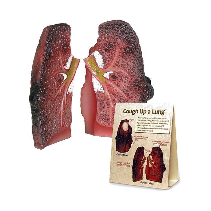 Anatomisches Modell / Lungen / Bronchie / Pathologie - 78958 ...