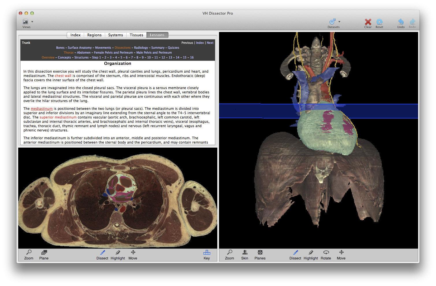 Software für Fortbildungen / Anatomie - VH Dissector for Medical ...