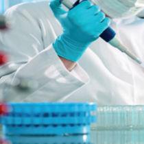 Testkit für Geschlechtskrankheiten / Ureaplasma parvum / Ureaplasma urealyticum / für DNA