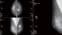 Diagnose-Software / Analyse / Mammographie