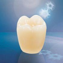 Verbundwerkstoff-Zahnprothese / für hintere Zähne