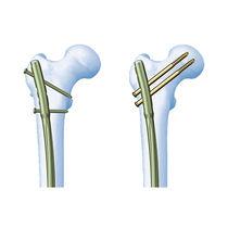 Marknagel für Oberschenkelknochen
