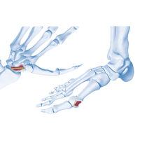 Knochen-Kompressionsschraube / Handwurzelknochen