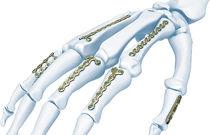 Knochen-Kompressionsplatte / Metacarpalfrakturen