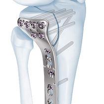 Knochen-Kompressionsplatte / Tibia / proximal