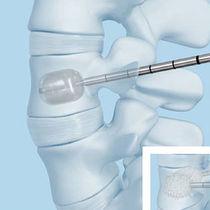 Vertebroplastie-System / Ballonkatheter / für perkutane Kyphoplastie