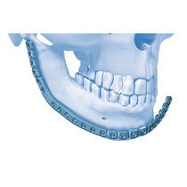 Knochen-Kompressionsplatte / Unterkiefer / distal