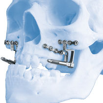 Kieferchirurgischer Distraktor / Innen / für Erwachsene