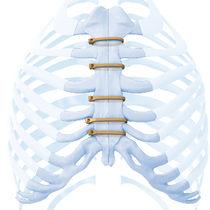 Knochen-Kompressionsplatte / Brustbein