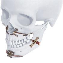 Platte für Osteotomien / Oberkiefer / Unterkiefer