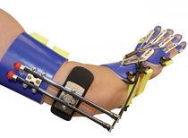 Handgelenkorthese orthopädische Stillegung / Fingerorthese / Mittelhandorthese / Fingerbeuge