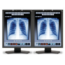 Monitor für Radiologie / Diagnose / LCD / LED