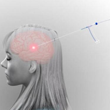 Laser-Ablationssystem / für Thermo-Ablation von Zerebraltumoren / IRM geführt Visualase Medtronic
