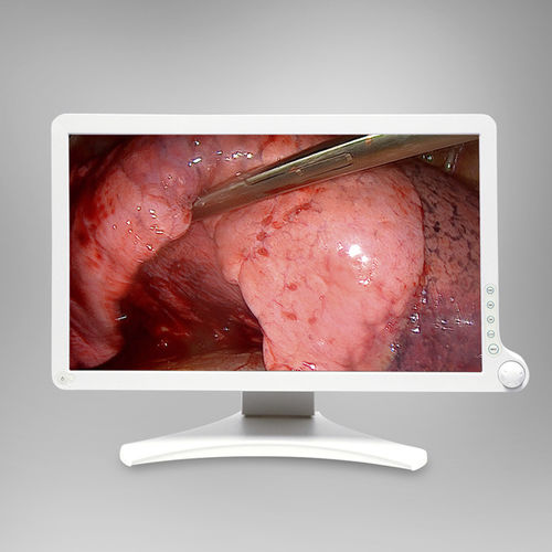 Chirurgie--Monitor / für Endoskopie / Full HD / mit LED-Rückbeleuchtung AMM 215WTD Barco