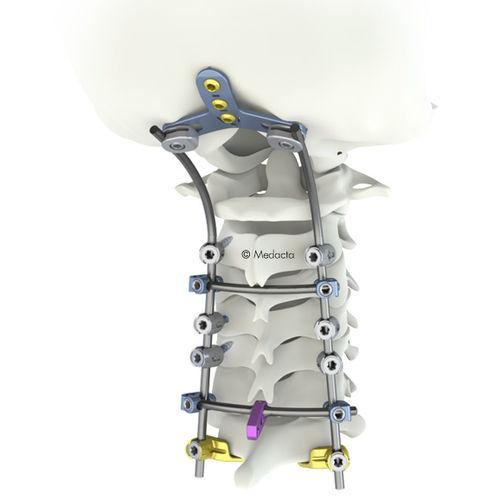 Stabilisierungssystem für Osteosynthese / LWS / dorsaler Zugang / für Erwachsene