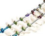 Okzipito-zervikothorakale Stabilisierungssystem für Osteosynthese / posterior / für Erwachsene
