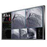 Monitor für OP-Bereich / für medizinische Bildgebung / 4K / LCD