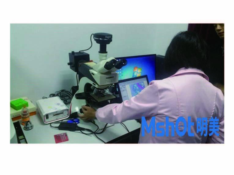 Leica mikroskop mit scmos kamera für mikroskopie darstellung