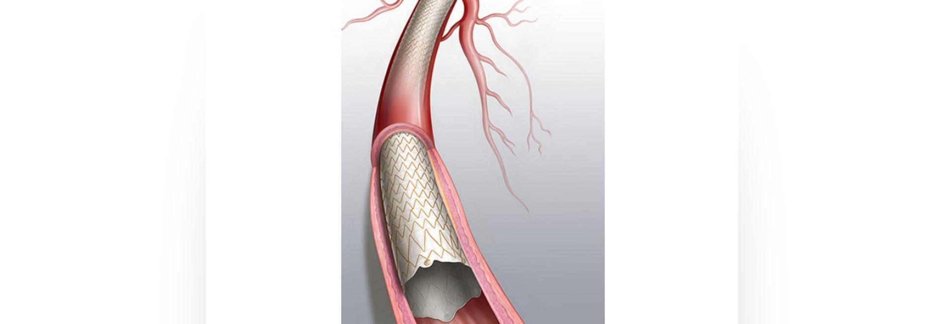 FDA-Zulassung des Covera-gedeckten Stents für Patienten mit Nierenerkrankungen im Endstadium der Hämodialyse vor dem Inverkehrbringen durch die FDA