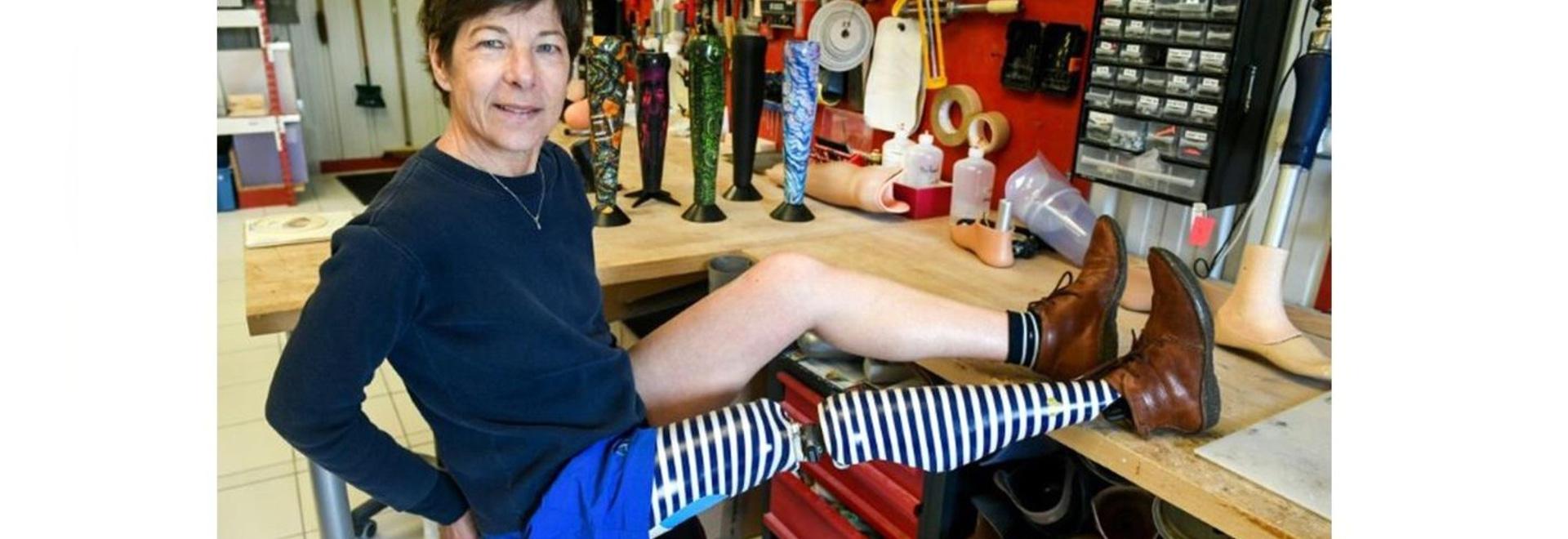 """Hässliche"""" Prothesen werden mit französischem Design behandelt"""