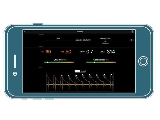 Smartphone unter Verwendung seiner Kamera kann Herz-Gesundheit festsetzen