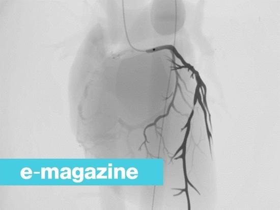 Microswimmer-Roboter, zum durch blockierte Arterien zu bohren