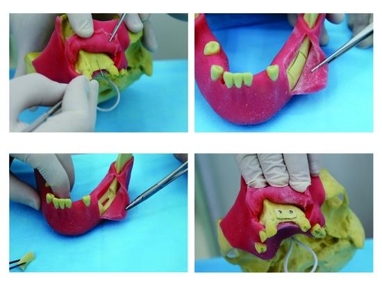 Vor molares Modell mit Gummi