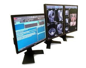 Visualisierungssoftware / Diagnose / für medizinische Bildgebung