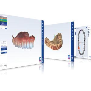 Software für Zahnprothese-Design