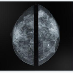 Mammographie-Software - Medecom