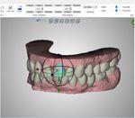 orthodontische Software