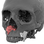 Schneidschablone für Kiefer- und gesichtschirurgischen Aufbau