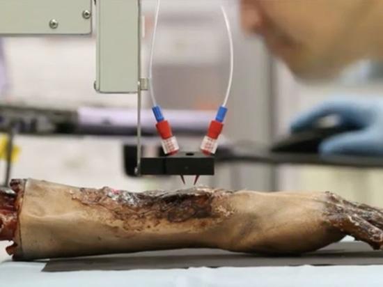 Druck von Haut-Zellen auf Brand-Wunden