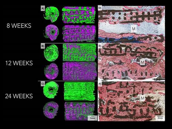 helfen keramische Implantate 3D-Printed Regrow Knochen