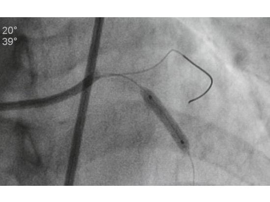 Thema des Monats August 2021: Ein Blick in das Herz-Kreislauf-System: Möglichkeiten der medizinischen Bildgebung