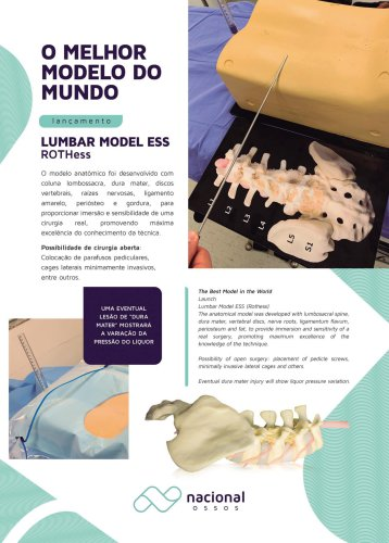 Lumbar Model Ess